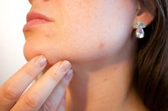 Having acne-prone skin can take a huge toll on your confidence. Which is why we are here to help you. Scroll down to check out, how you can prevent and treat acne and pimples, without spending a lot of money. Vicks Vaporub, Natural Acne Remedies, Home Remedies For Acne, Red Spots On Face, Dark Spots, Brown Spots, Rhassoul, Double Menton, How To Get Rid Of Pimples