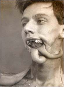 A small boy whose face was ravaged by Congenital Syphilis, which occurs when a child is born to a mother with syphilis. The devestation of this disease was ho