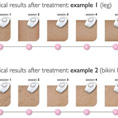 In Philips Lumea Comfort IPL Hair Removal System there is a skin sensor that will also make sure that you do not use this on the wrong skin. Philips Lumea, Lady Shavers, Intense Pulsed Light, At Home Hair Removal, Hair Removal Systems, Product Review, Laser Hair Removal, Dark Skin, Beauty Care