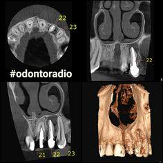 Alteração óssea periapical junto ao ápice radicular do  dente 22, com envolvimento da raiz do dente 23 e destruição da cortical óssea vestibular. Lesão cariosa na face mesial do dente 23. #radiologia #odontoradio #odontologia #xray #tomografia #dentist #dentistry #oralradiology #ctbmf #radiologiaodontologica #tomography  #radiology #odontoiatria #implantodontia #imaging #conebeam #lajeado #teutonia #implantes #orto #endodontia