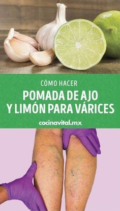 Health Remedies, Home Remedies, Healthy Tips, Healthy Recipes, Fitness Workout For Women, Varicose Veins, Health Advice, Hair Health, Natural Cures
