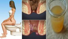 24 Hour 1-Ingredient Hemorrhoid Treatment at Home that Will Shrink Them Super…