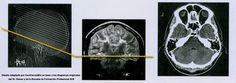 3 Lei tronco cerebral endoderme Hamer alemão Nova Medicina do sistema biológico ontogenético