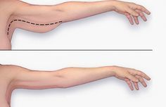 Exercices: Comment perdre des bras et les muscler en 2 semaines?