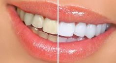 Your Own Teeth Whitening Solution | 100% GIRLS