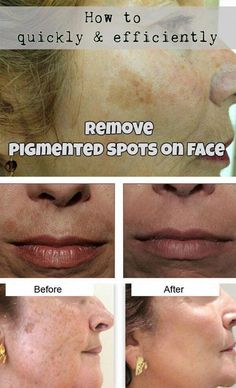 How To Quickly And Efficiently Remove Pigmented Spots On Face #SkinCareForBrownSpots #BrownSpotsOnSkin