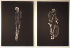 Ayako Kanda y Mayuka Hayashi llevaron la idea del amor hasta los huesos a fotos: eligieron cuatro parejas a las que retrataron a través de rayos X.
