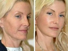 Before/After Vampire Facelift Bbc, Beauty Care, Beauty Hacks, Hair Beauty, Charlotte Bonnet, Cosmetic Fillers, Anti Aging, Anti Ride, Belleza Natural