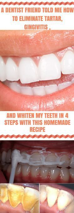 A Dentist Friend Told Me How to Eliminate Tartar, Gingivitis, and Whiten My Teeth in 4 Steps With This Homemade Recipe #teethwhitening  #dentalcare