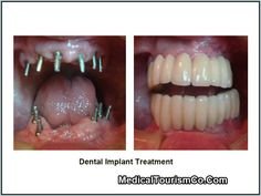"""An extremely easy on the pocket option is dental implants in Mexico. Read on to know what traveling to the North American country for getting """"artificial teeth"""" entails."""