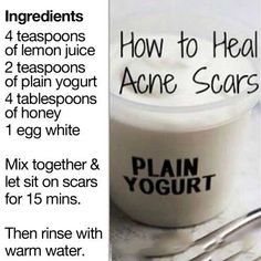 How to treat Acne Scars  #Acne #Skin #Scars
