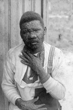 Florida Memory - Smallpox patient in Walton County, Florida.  Jan. 9, 1904. Photo by Dr. Hiram Byrd, Lewis' Camp, Walton County