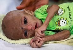 A malnourished Pakistani girl.  In whose world is it OK to not supply food to these children?