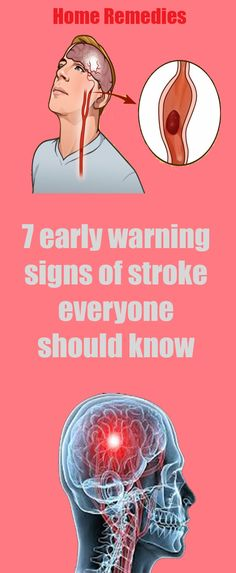 7 early warning signs of stroke everyone should know Health Advice, Health And Wellness, Health And Beauty, Health Fitness, Make Up Looks, Healthy Detox, Healthy Tips, Healthy Food, Ursula