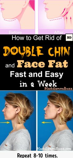 How to Get Rid of Double Chin and Face Fat Fast and Easy in a Week.Included here double chin exercises to reduce face fat and double chin without surgery.Try this. #doublechin #facefat