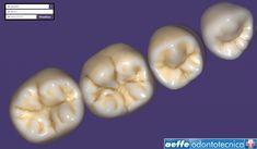 Librerie Dentali Digitali: Conviene Aggiornarle Teeth, Vegetables, Food, Essen, Tooth, Vegetable Recipes, Meals, Yemek, Veggies