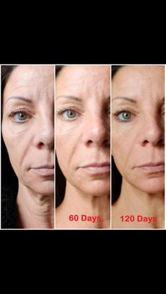 Nerium Before and After. Visit Janetlm.Nerium.com today for more information!