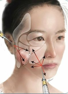 Contouring by Targeted Restoration of Facial Fat Compartment Volume: The Midface Body Plastic Surgery, Plastic And Reconstructive Surgery, Botox Fillers, Dermal Fillers, Relleno Facial, Facial Aesthetics, Advanced Aesthetics, Facial Cosmetic Surgery, Facelift Without Surgery