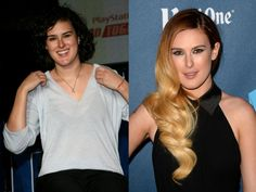 Rumer Willis Extreme Plastic Surgery, Celebrity Plastic Surgery, Cheek Implants, Facial Fillers, Rumer Willis, Under The Knife, Botox Injections, Liposuction, Celebs