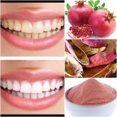 teethwhiteningnaturalDo you know about amazing benefits of #pomegranate??? Visit http://teethwhiteningnatural.com/ and get #whiteTeeth naturally without applying harmful commercial solutions like #TeethWhiteningKIts and Expensive #DentalTreatments #Beautiful #Hollywood #Smile take #Selfies #Celebrities #Beauty #Fashion