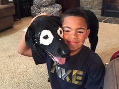 Carter odiaba su condición de piel… ¡Hasta que conoció a Rowdy!