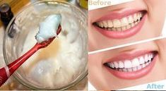En Kolay ve Etkili Diş Beyazlatma Yöntemleri