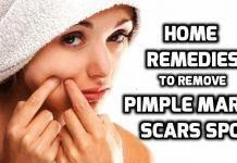 How to Remove Pimple Marks? – Get Rid of Pimple Marks or Scars #PimplesOnForehead Cystic Acne Remedies, Natural Acne Remedies, Home Remedies For Acne, Skin Care Remedies, Acne Skin, Acne Scars, Pimple Marks, Back Acne Treatment, Acne Treatments