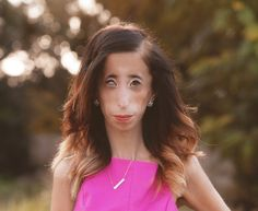 Lizzie Velasquez: My Anti-Bullying Story - The Daily Beast Bullying Stories, Human Oddities, Face Reveal, The Daily Beast, Intersectional Feminism, World Pictures, Anti Bullying, Change My Life, Being Ugly