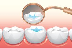 Dental sealants, also known as pit and fissure sealants, or simply fissure sealants, are a dental treatment intended to prevent tooth decay. The back teeth have pits, fissures, and grooves that are a perfect hiding place for streptococcus mutans to grow and cause decay. Dental sealants fill up the small grooves, keeping food and bacteria out and stopping decay from growing in the pits and fissures.