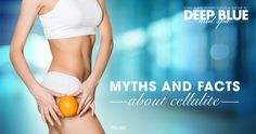 What is cellulite? Uncover the truth with our list of myths and facts about cellulite. If you're considering cellulite treatment, Cellfina™ may be right for you. #CelluliteDetoxxx