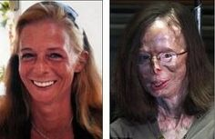 U.K. - Her lover did it. Richard Remes threw sulphuric acid on Patricia Lefranc. Her nose and eyelids were melted away, she lost sight in one eye and hearing in one ear, she also lost a finger. She came close to death, as the corrosive substance nearly burned through her heart and lungs.The horrific attack physically and emotionally scarred her for life.