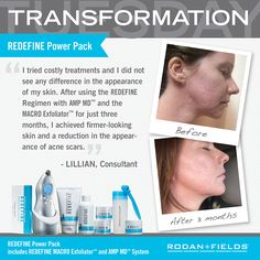 Got acne scars?!?! Our REDEFINE regimen, AMP MD and MACRO E can help!! Ask me how TODAY!!