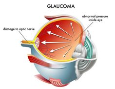 Glaucoma is a disease that damages the eye's optic nerve. The optic nerve is connected to the retina where it sends signals to the brain. The signals are then interpreted as images. Glaucoma Symptoms, Eye Structure, Eye Damage, Optic Nerve, Laser Surgery, Peripheral Vision, The Retina, Eye Sight Improvement, Stem Cell Therapy