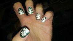 Flakey nails