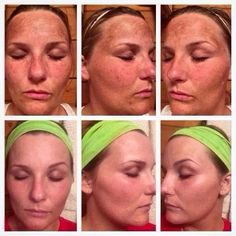 Do you have increasing #agespots? This woman used the #RodanFields REVERSE Regimen w/ AMP MD System. These before pics are July 2014 and the afters are Dec 2014. R+F offers a 60 day, 100% empty bottle, money back guarantee!! No questions asked!! Let's get you started! Message me!