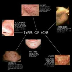 Understanding Which Type of Acne You Have can Aid in Discovering how to combat it