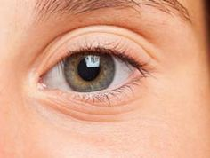 Swollen Eyes: Signs, Symptoms, Causes And Treatments