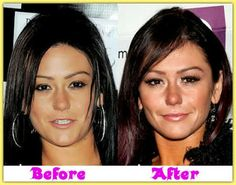 jWoww cosmetic surgery isn't a rumour. She's obviously said that she'll use Botox shots when she'll become the 30s.