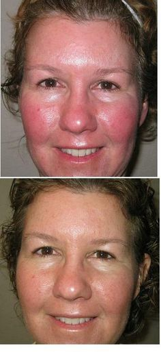 Calm irritation and reduce redness with our clinically proven Rodan + Fields SOOTHE regimen for sensitive skin. Learn more about SOOTHE. Rodan And Fields Regimen, Rodan And Fields Soothe, Rodan Fields Skin Care, My Rodan And Fields, Rodan And Fields Consultant, Love Your Skin, Good Skin, Anti Aging, Acne Rosacea