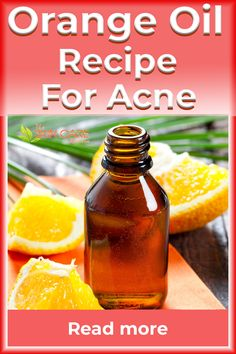 Whenever I get an acne breakout, here's the sweet orange oil recipe I use. Find this DIY skincare recipe at the theskincarereviews.com #orangeoil #sweetorangeoil #orangeessentialoil #acne #skincare Wild Orange Essential Oil, Oregano Essential Oil, Essential Oils For Skin, Best Acne Products, Clear Skin Tips, Orange Oil, Homemade Skin Care, Natural Skin Care, Oil Recipe