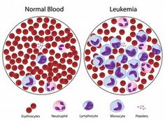 Childhood Leukemia : disease is a cancer of the blood-forming tissues. Most of the time, it is a cancer of the white blood cells, but some leukemia's start in other kinds of blood vessels. Leukemia Symptoms, Cancer Treatment, Acute Lymphoblastic Leukemia, Illustration Inspiration, Leukemia Awareness, Medical Laboratory Science, Childhood Cancer Awareness, Normal Blood, Natural Remedies
