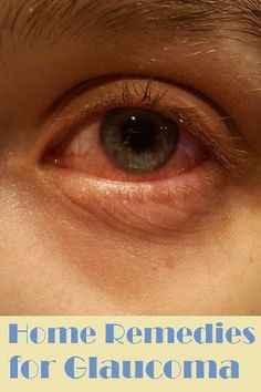 Home Remedies for Glaucoma..