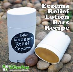 These eczema relief lotion bars combine nourishing mango butter with fermented cod liver oil and beeswax to coat and protect skin so it can heal. Diy Lotion, Lotion Bars, Organic Skin Care, Natural Skin Care, Natural Health, Natural Glow, Eczema Relief, Itch Relief, Diy Beauté