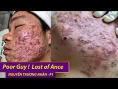 Lost of Acane  Điều trị mụn hiệu quả số 1 TPHCM   Hiền Vân spa  Nguyễn Trường Nhân   531 - YouTube Pimples, Lost, Spa, Guys, Youtube, Sons, Youtubers, Boys, Youtube Movies