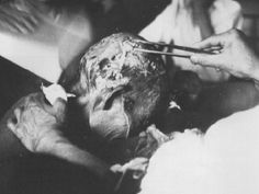 Pictures of Hiroshima bombing victims - WWII