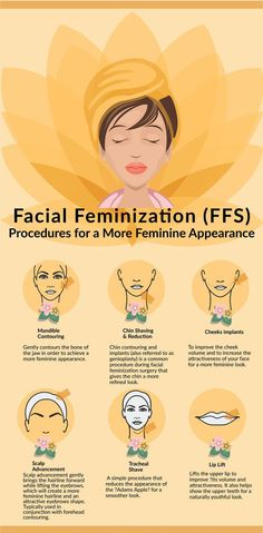 An infographic discussing various facial feminization surgery (FFS) treatments and procedures for a more feminine look. Please, please do be careful with implants, as some of these can be toxic to the body, especially certain silicon. Filles Alternatives, Facial Feminization Surgery, Transgender Tips, Transgender Hormones, Trans Mtf, Mtf Transition, Male To Female Transformation, Cosmetic Treatments, Little Doll