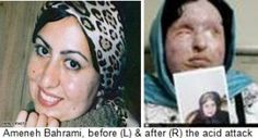 Ameneh Bahrami rejected the offer of having a relationship with Majid Movahedi, a fellow student at the University of Tehran. He then threw a bottle of acid in her face.