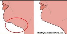 Exercises and Other Natural Ways to Get Rid of Double Chin