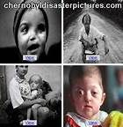 Chernobyl Nuclear Disaster Russian Effects - Bing Images Nuclear Physics, Nuclear Power, Nuclear Disasters, Chernobyl, Fuel Efficiency, Children, Bing Images, Google, Young Children