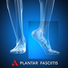 treatment for plantar fasciitis in heel
